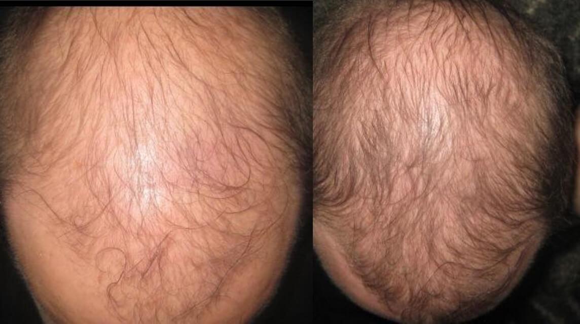 Результаты роста волос у пользователя после использования Lipogaine