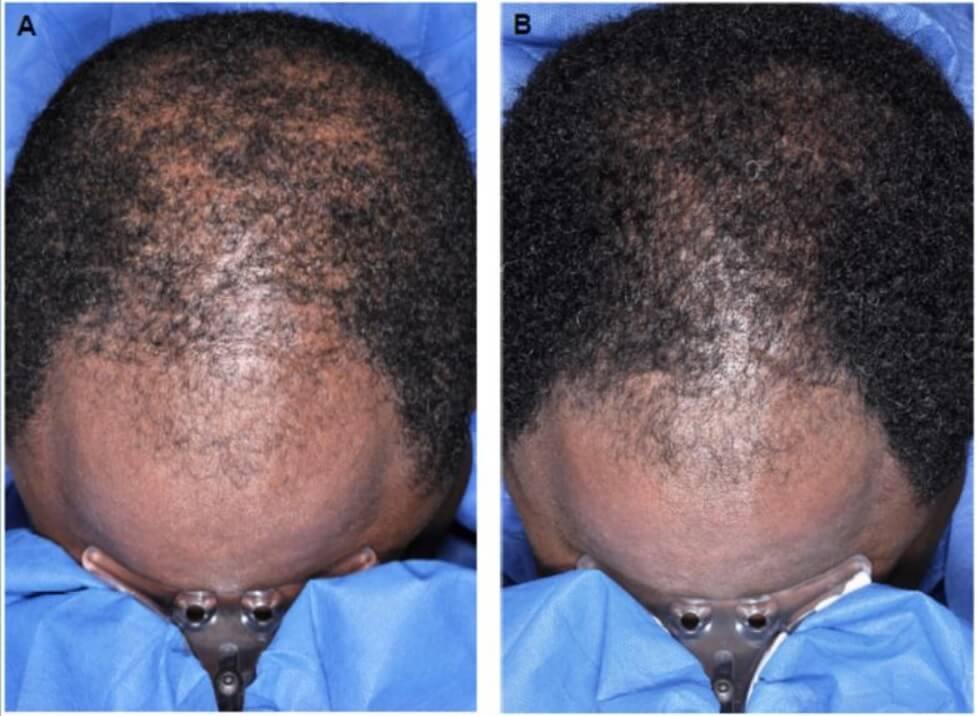 Результаты миноксидила на волосах